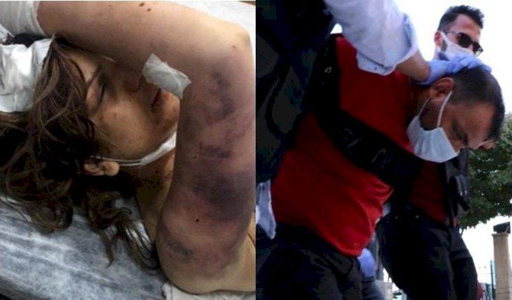 Urfa'da Eşine İskence Eden Koca Gözaltına Alındı
